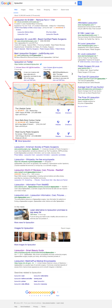 Google SERP of Local SEO marketing liposuction